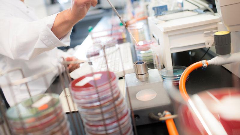 microbiologisch onderzoek